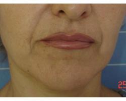 ДО: лазерное омоложение лица.до-через 2 года после 1ой процедуры
