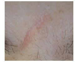 ПОСЛЕ: лазерное лечение гипотрофического рубца.до-после1ой процед-после 2ой проц