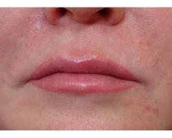 ПОСЛЕ: коррекция носогубных морщин филлером(гелем) на основе гиалуроновой кислоты