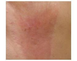 ПОСЛЕ: лазерное лечение послеожогового рубца.до-после 1ой проц