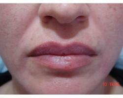ДО: коррекция носогубных морщин филлером-гелем на основе гиалуроновой кислоты