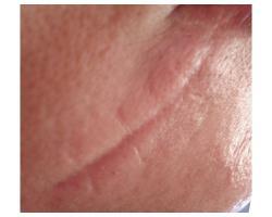 ДО: лазерное лечение рубца.до-после 2х проц